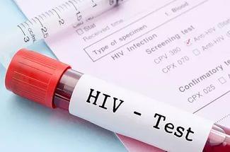Отрицание ВИЧ может стать темой нового меморандума РАН