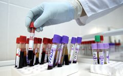 Пациенты с ВИЧ смогут получать терапию при переезде в другой регион