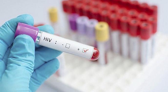 Удмуртия выделит на диагностику ВИЧ 15,8 млн рублей