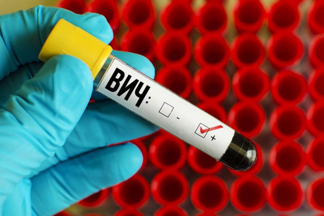 Число случаев заболеваемости ВИЧ в Чувашии выросло на 38% за год