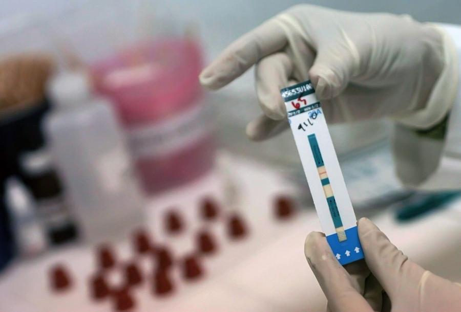 До 28 мая новосибирцы смогут пройти бесплатную экспресс-диагностику на ВИЧ
