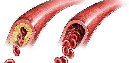 Атеросклероз – причины, симптомы и лечение