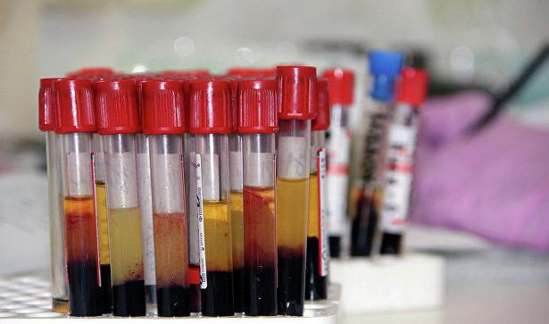 В России планируют ввести наказание за ВИЧ-диссидентство