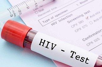 Начались испытания антител для профилактики ВИЧ-инфекции