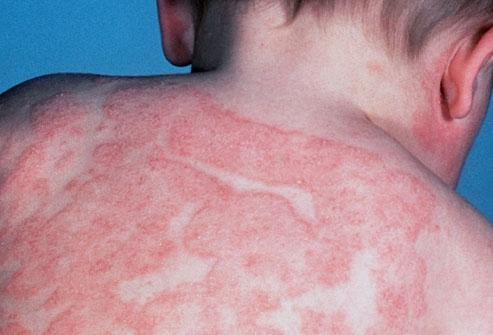Лечение атопического дерматита у детей