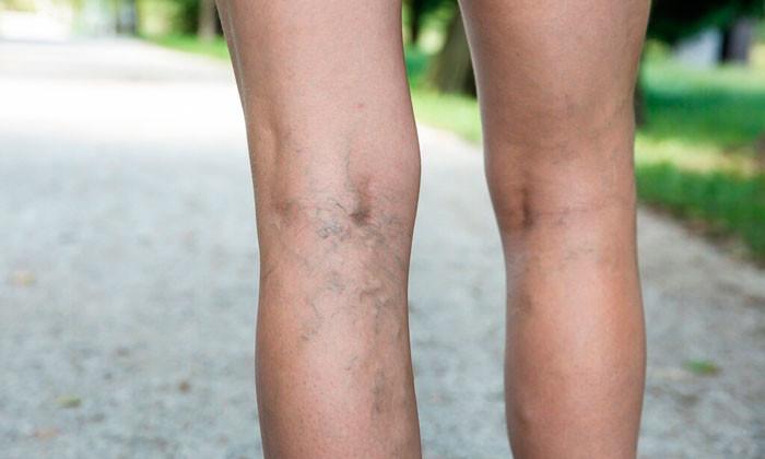 12 Способов профилактики варикоза