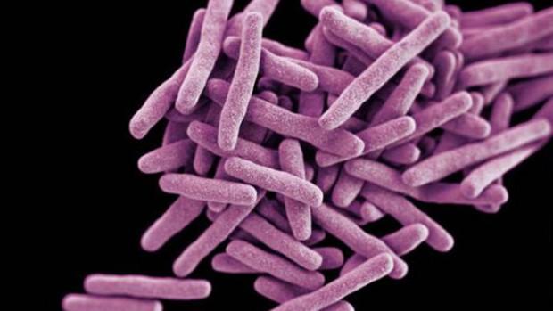Специалисты объяснили, почему туберкулез не стал причиной смерти всего человечества