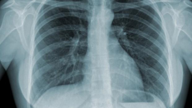 Эксперты создали портативное устройство, способное обнаружить туберкулез за 20 минут