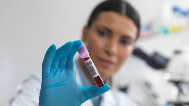 Анализ крови поможет обнаружить туберкулез