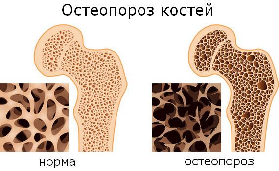 Лечение остеопороза в клинике «АртроМедЦентр»