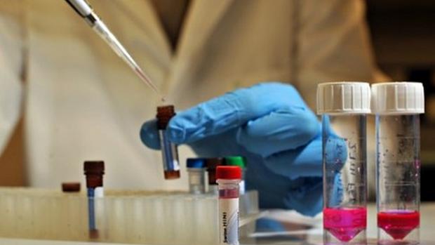 Медики выяснили, из чего нужно делать эффективную вакцину от ВИЧ