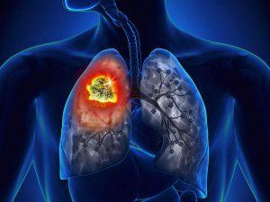 Онкологи опровергли пять самых популярных мифов о раке легких