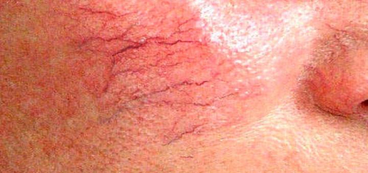 Лечение синдрома Ослера-Вебера-Рандю