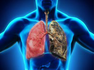 Причины распространения туберкулеза, недостатки диагностики и лечения туберкулеза