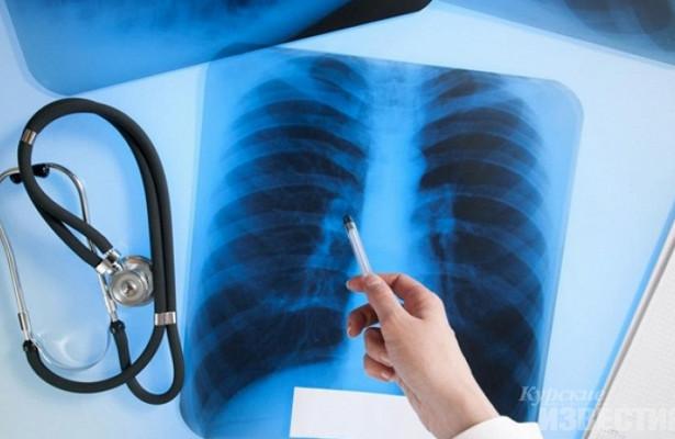 Курянина с туберкулёзом отправят на принудительное лечение