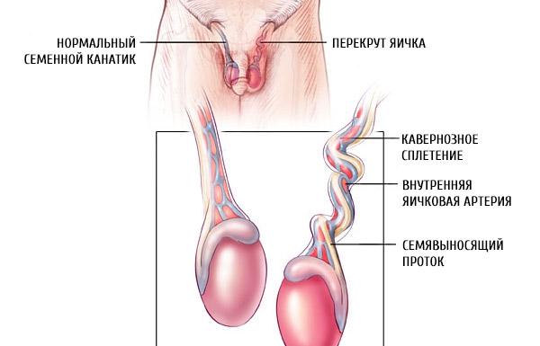 Перекрут яичка и варикоцеле