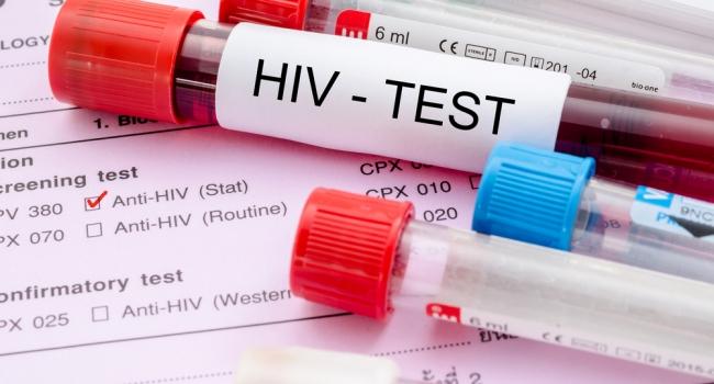 Чем опасна стигматизация ВИЧ