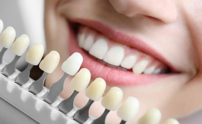 Протезирование зубов. Всё о косметической стоматологии и информации о процедурах