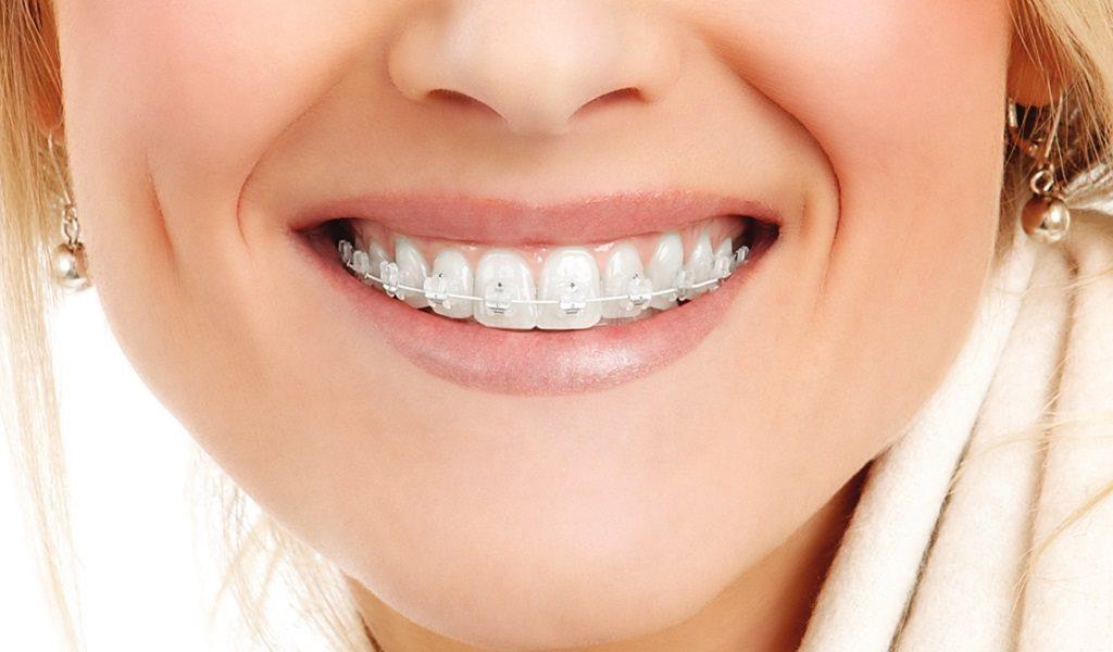 Брекеты для зубов (их разновидности, эффект, материалы изготовления и тд. )