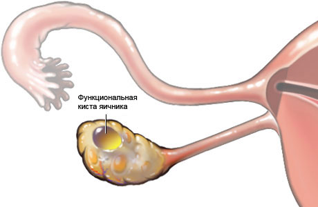 Гинеколог. Как гинекологи проводят диагностику кисты яичников?