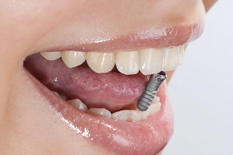 Преимущества восстановления зубов с помощью имплантов