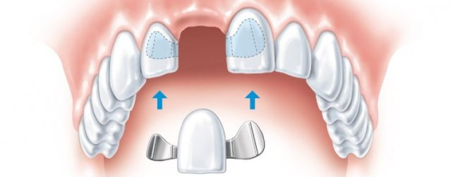 Протезирование зубов. Как получить информацию об имплантатах зубов