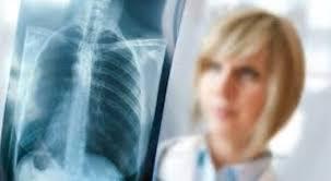 Сочетание гриппа и туберкулеза