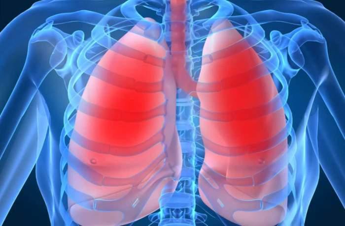 Как распознать пневмонию и что делать до приезда врача