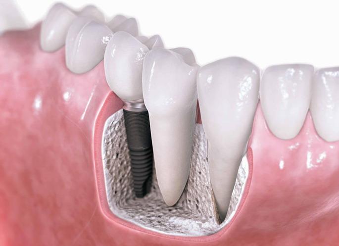 Процедура профессиональной имплантации зубов
