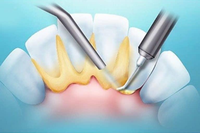 Удаление зубного камня