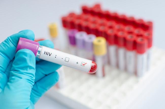 30% россиян, зараженных ВИЧ, не знают о наличии недуга