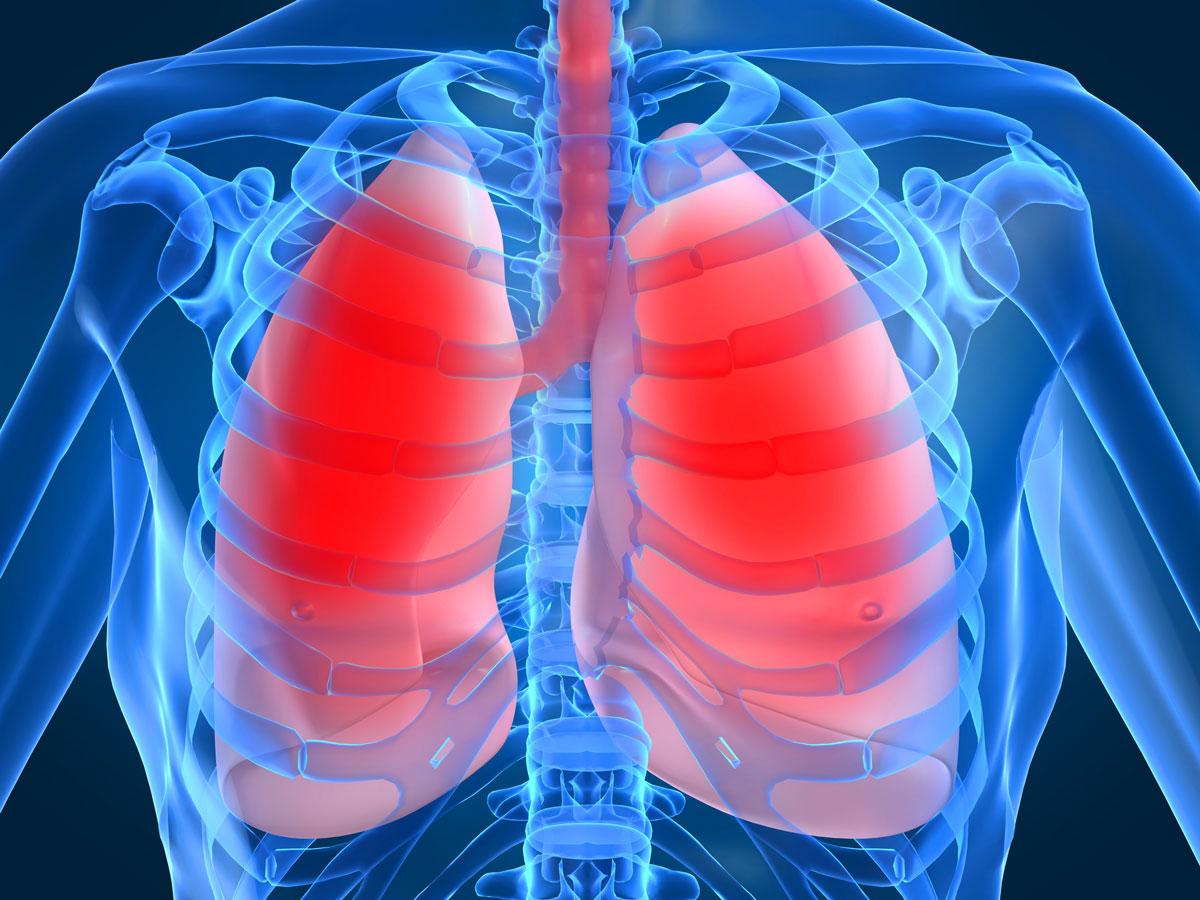 Пневмония: подробная информация