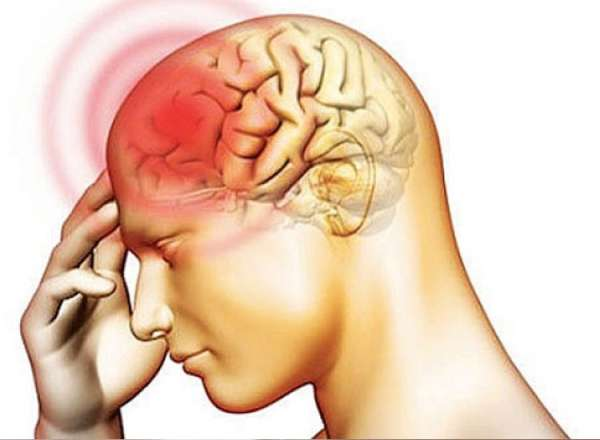 Менингит: причины, симптомы, диагностика и лечение