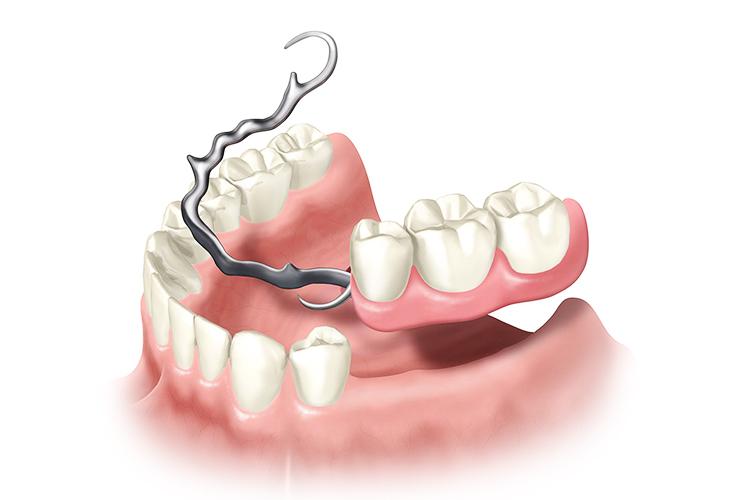 Протезирование зубов: особенности, этапы проведения, где сделать в Москве?