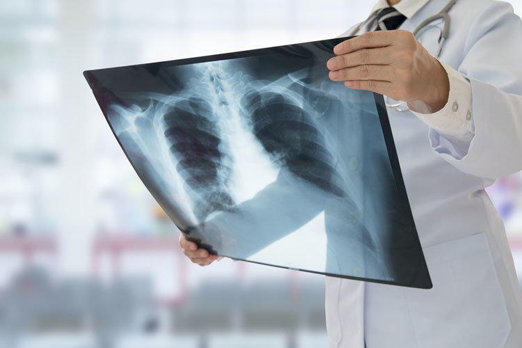 Пневмония: типы, симптомы, лечение
