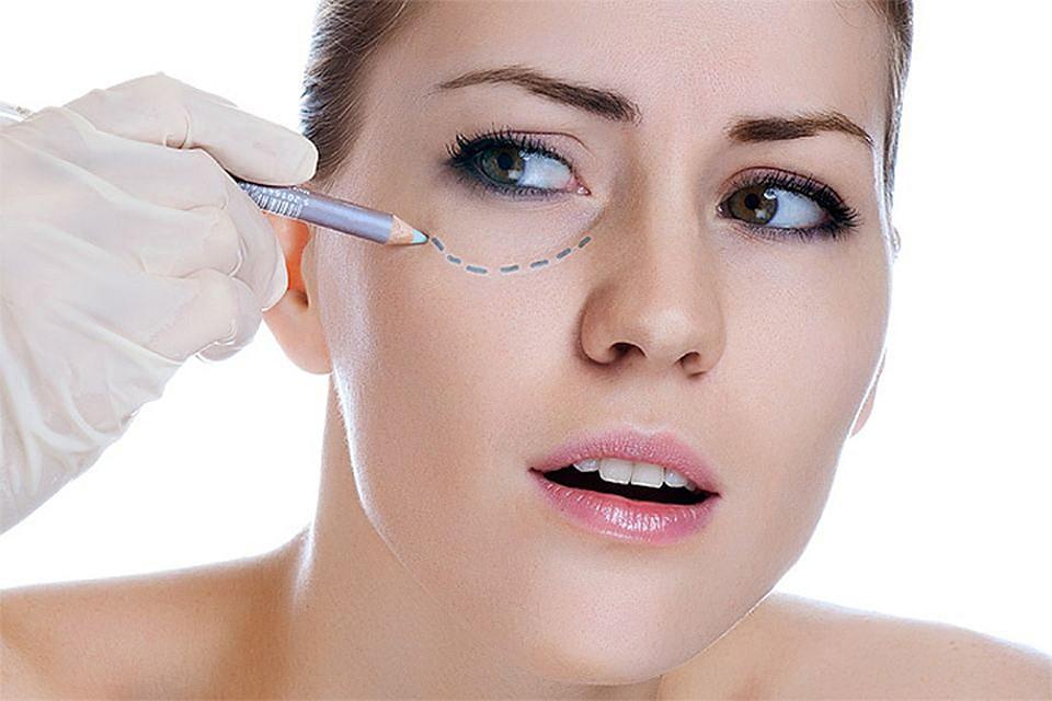 Блефаропластика и подтяжка лица. О чем стоит знать
