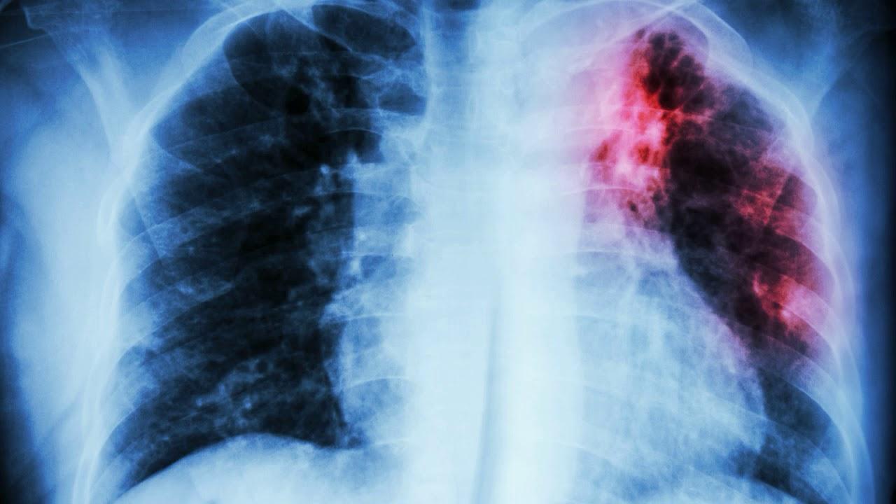 Как обнаружить туберкулёз на ранней стадии?
