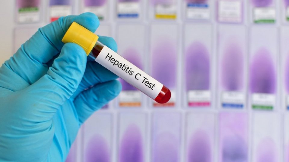Диагностика и информация о гепатита С