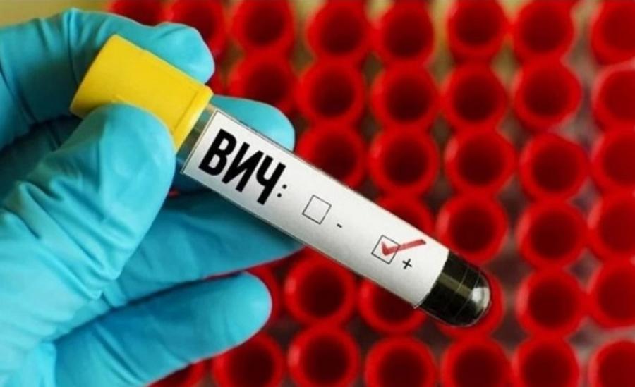 Эксперты рассказали, как распознать ВИЧ по симптомам