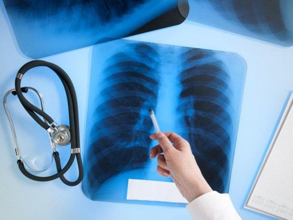 Выяснилось, почему так сложно победить туберкулёз