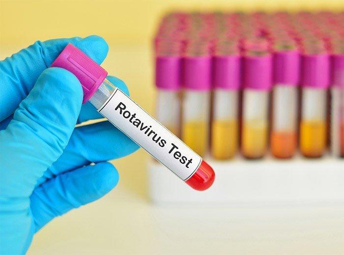 Диагностика и лечение ротавирусной инфекции у детей