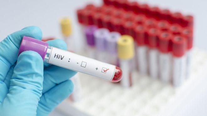Ученые могут создать вакцину от всех видов ВИЧ