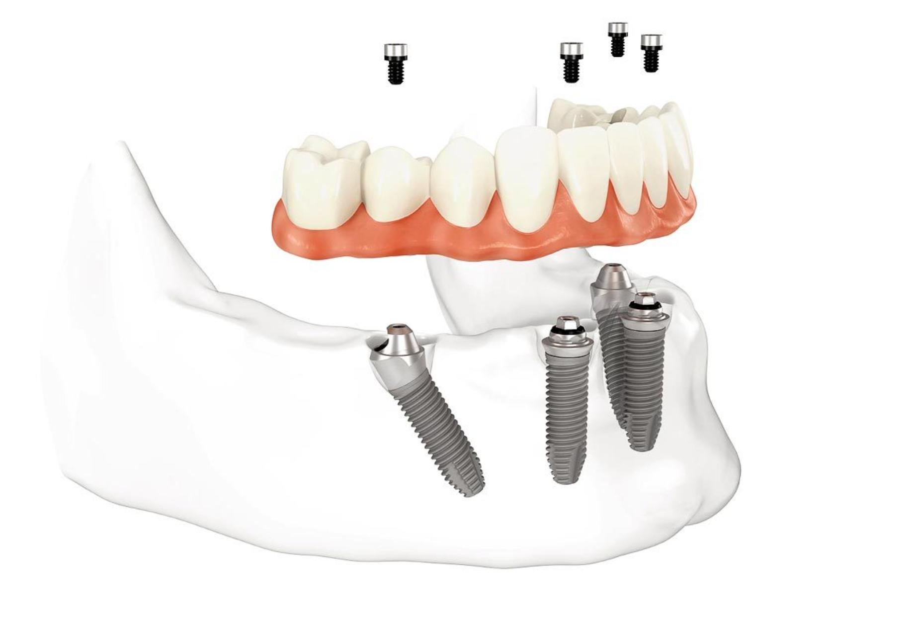 Качественные снимки зубного ряда и челюсти в рентгенодиагностическом центре Роден