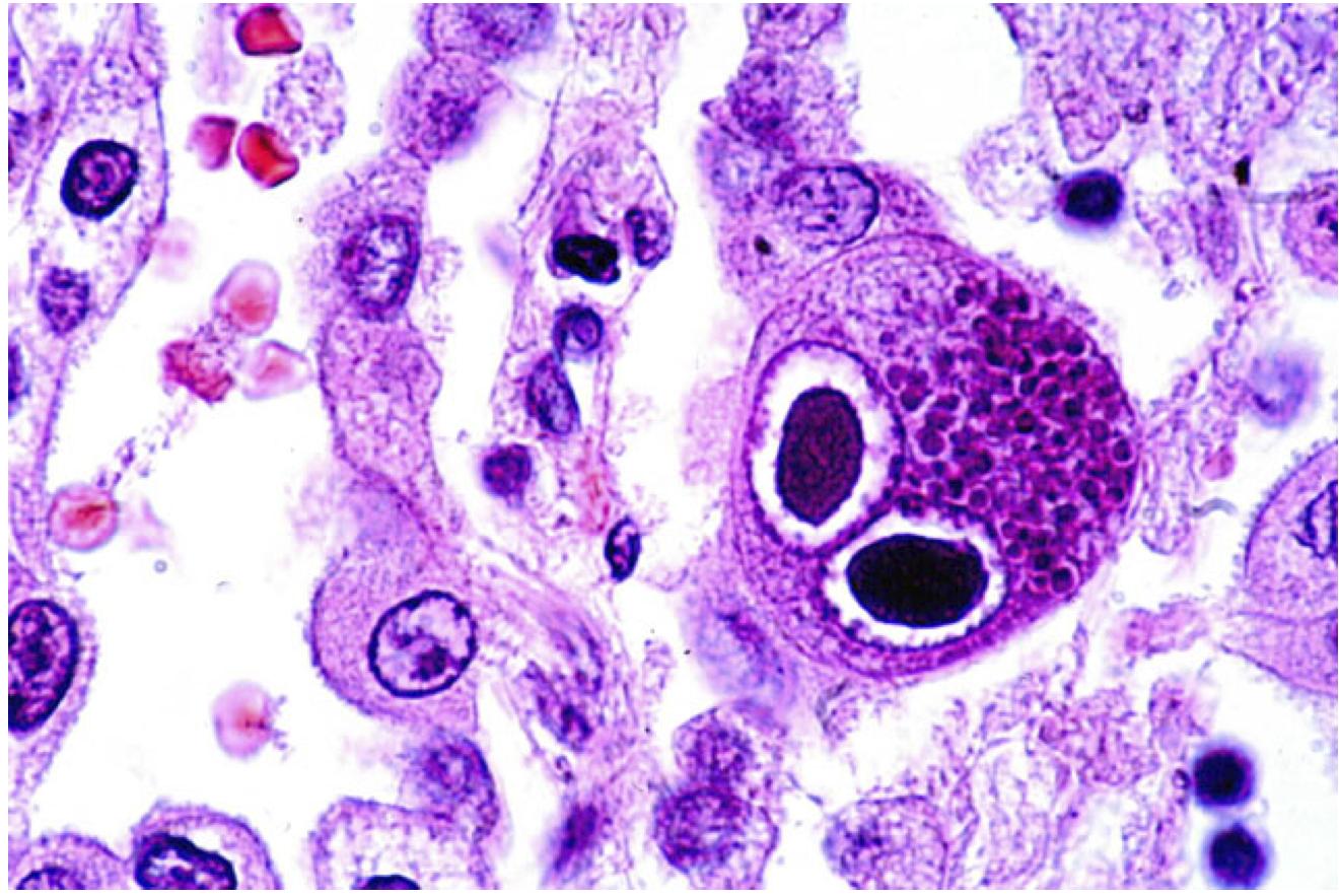 Цитомегаловирусная инфекция. Кому нужно на нее обследоваться?