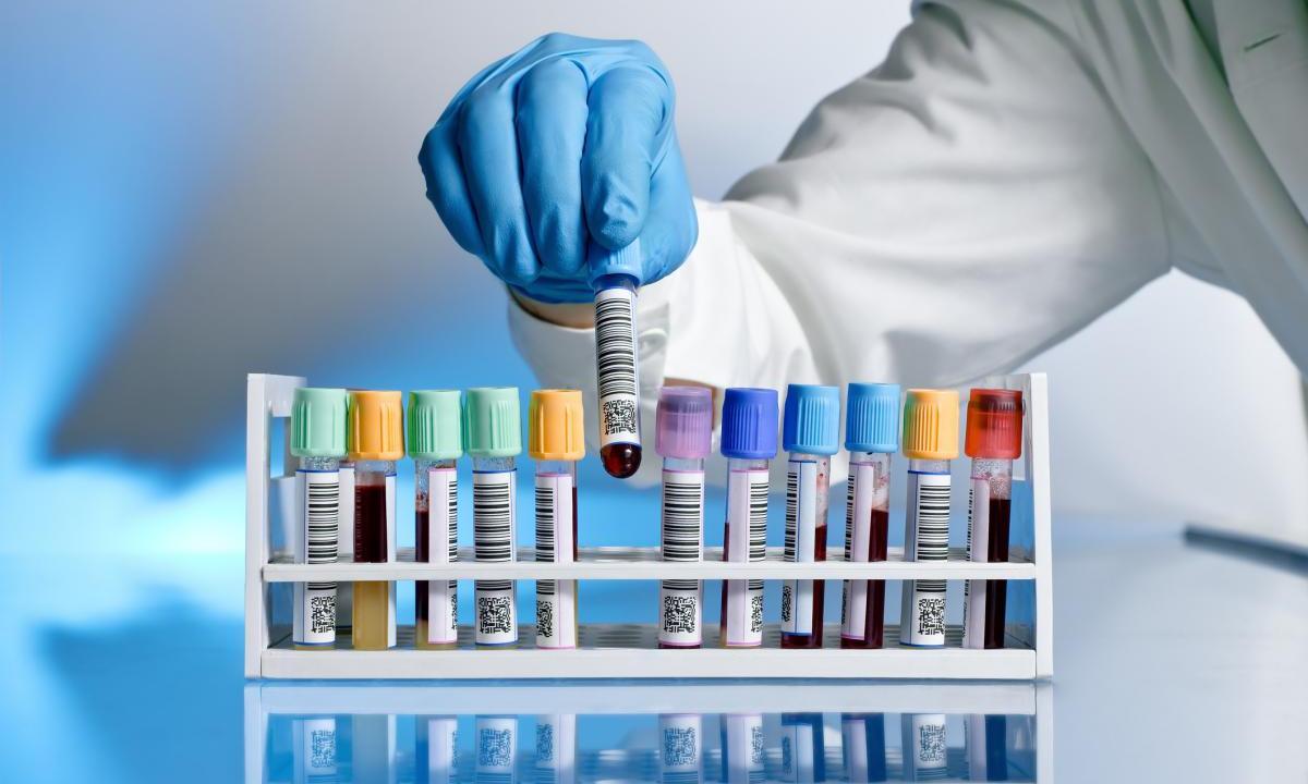 Лечение ВИЧ неэффективно, если в то же время лечиться от туберкулеза
