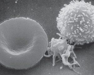 Ученые смогли «переобучить» иммунитет