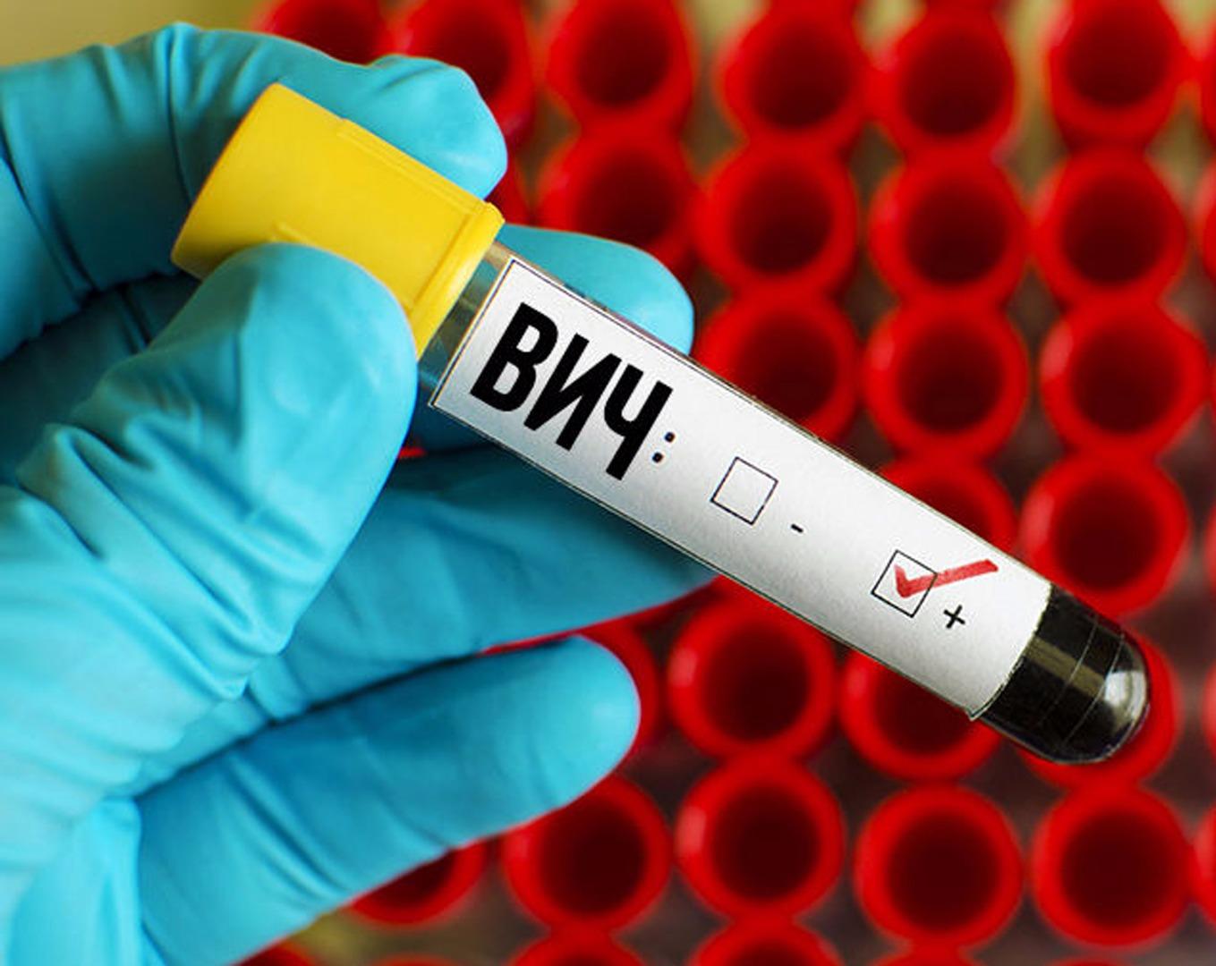 Дополнительные методы лечения с ВИЧ