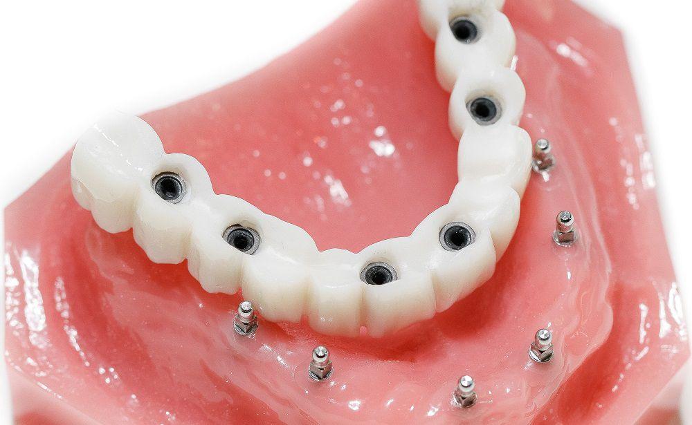 Проводим процедуру протезирования зубного ряда на Преображенке