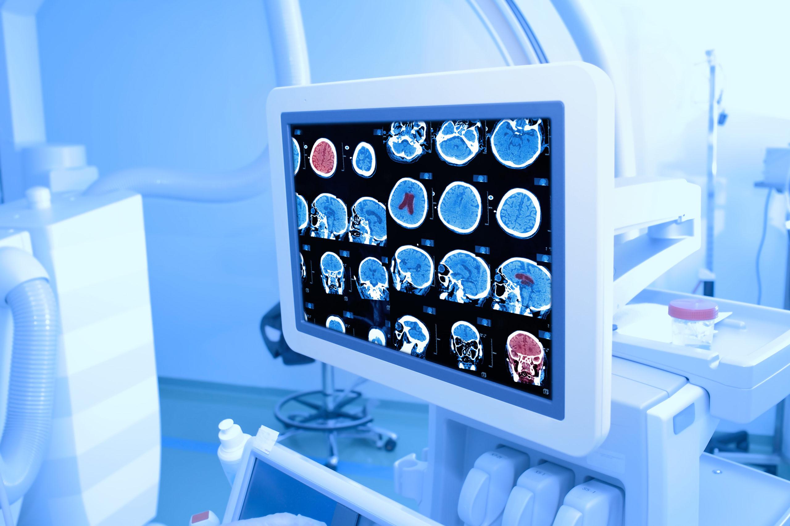 Лечение онкологических больных на поздних стадиях болезни