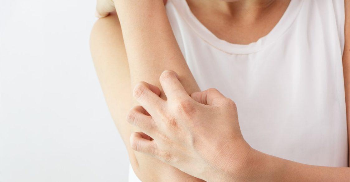 4 способа укрепить иммунитет при псориазе